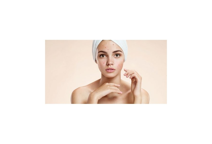 ACNE AND AROMATHERAPY FOR ACNE